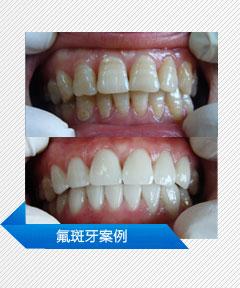 氟斑牙案例