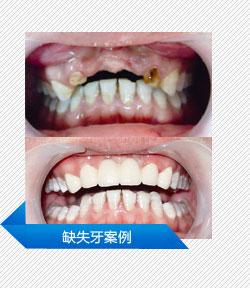缺失牙案例