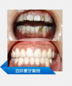 四环素牙案例