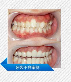 牙齿不齐案例